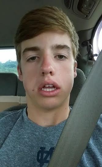 Wisdom Teeth Removal Aftermath