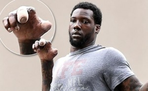 Picture of Jason Pierre-Paul injured hand.