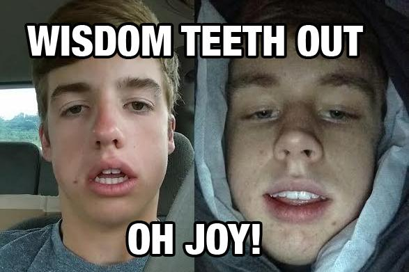Wisdom teeth removal is memorable experience