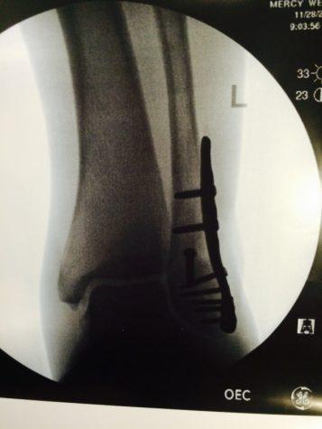 X-Ray of Masminsters leg